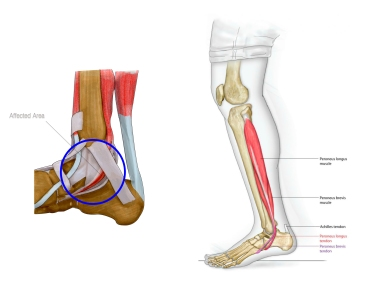 tibial_post